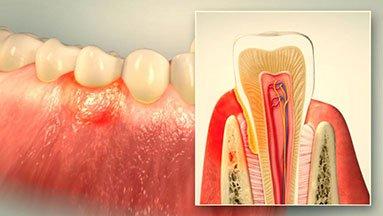 Parodontologie bei happydens