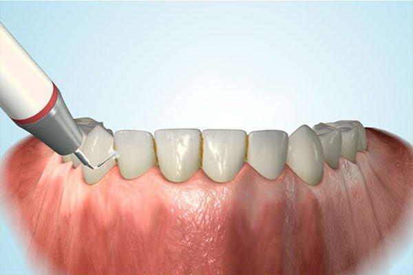Dentalhygiene bei happydens
