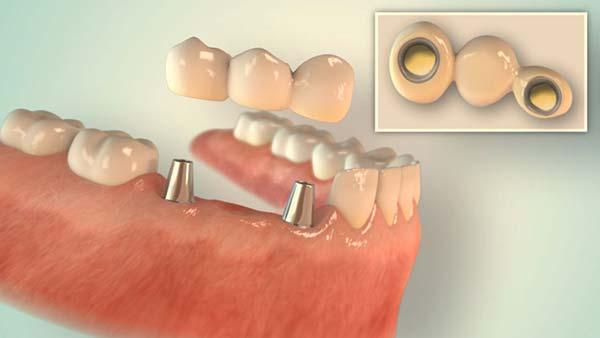 Implantate aus Düsseldorf von happydens