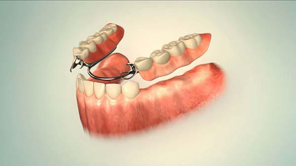 Günstiger Zahnersatz
