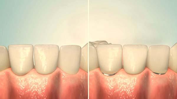 Günstiger Zahnersatz festsitzend