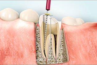 Wurzelbehandlung - Maßnahme zur Erhaltung Ihres Zahnes