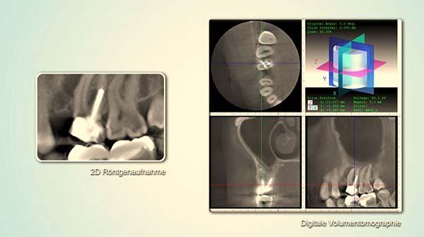 3D röntgen bei happydens in Düsseldorf