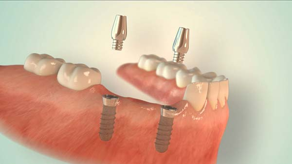 Implantate aus Düsseldorf