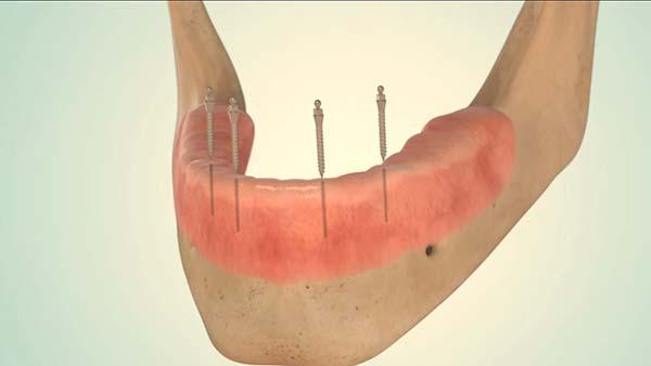 Mini Implantate bei Ihrem Zahnarzt in Düsseldorf