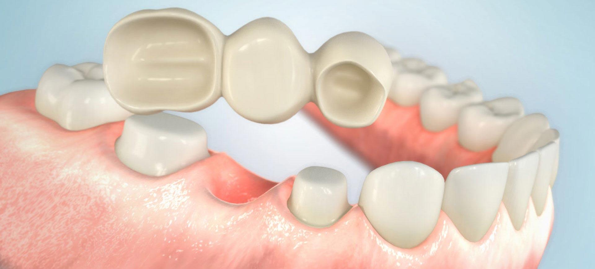 happydens - Ihr Zahnarzt aus Düsseldorf