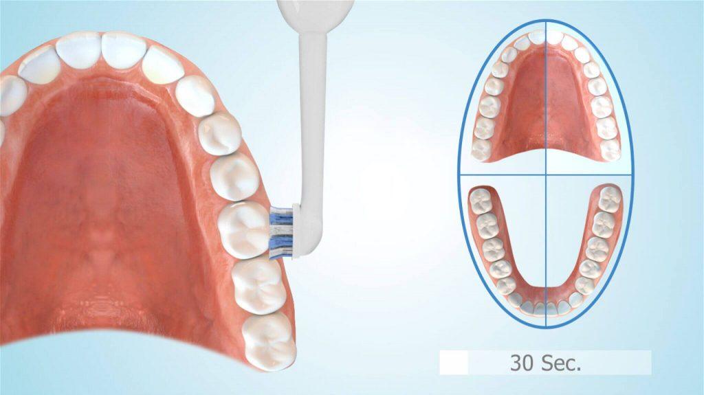 elektrische Zahnbürste