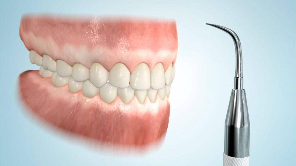 Zahnstein entfernen lassen