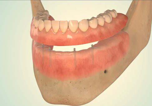 mini implantate