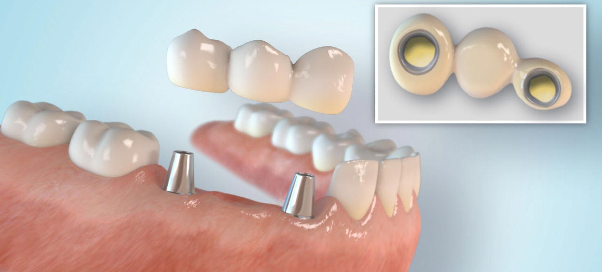 implantat slide